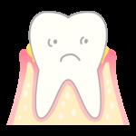 歯周病の始まり
